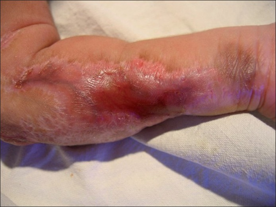 Figure 2 :Close-up view of the scar over the left forearm